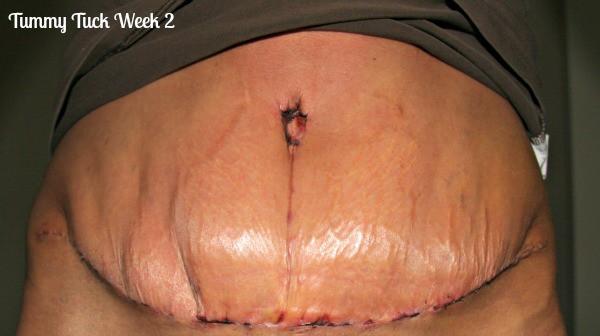 Tummy-tuck-week-2